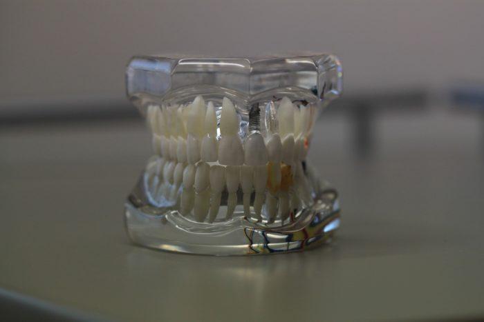 dentistry-668214_1920